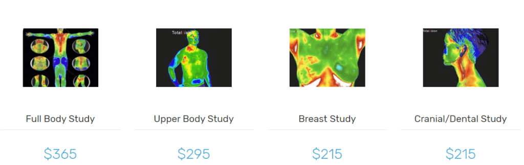 Thermography scan charts